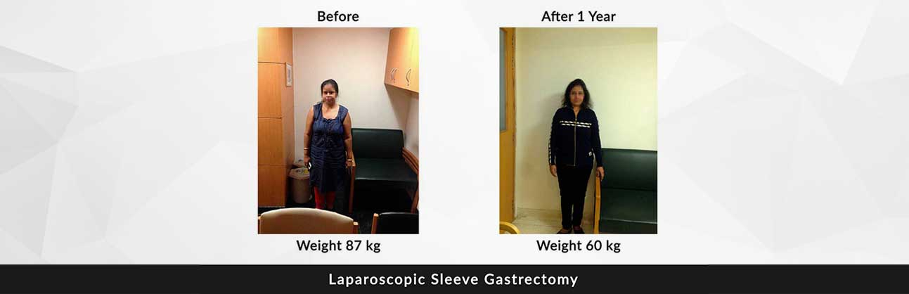 weight loss in delhi