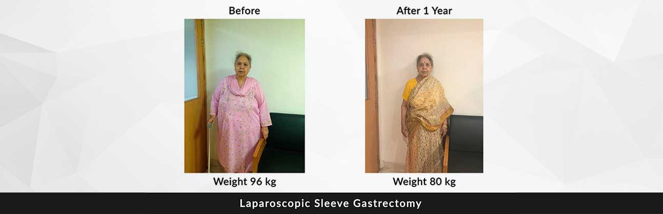weight loss surgery delhi