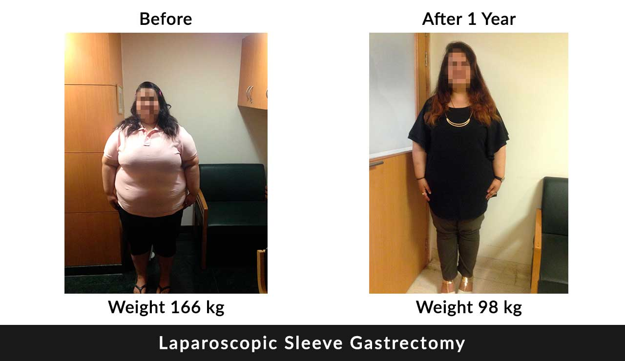 bariatric-surgical procedures